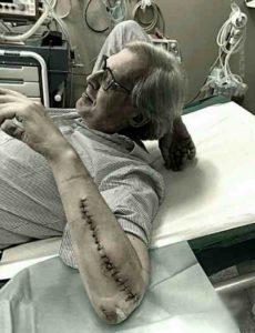 Vittorio Sgarbi, foto shock del braccio ricucito dopo l'intervento