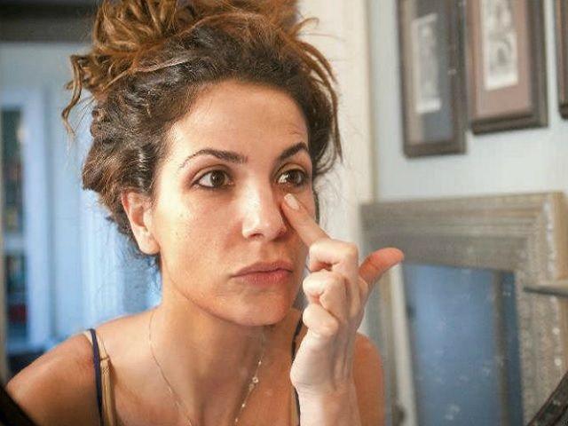 Roberta Morise rischia di perdere la vista e racconta il suo dramma