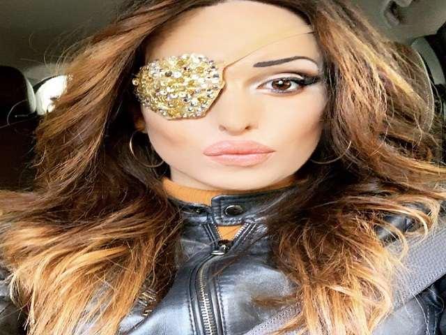 Sfregiata dall'acido, Gessica Notaro in ospedale mostra in un video l'occhio lesionato
